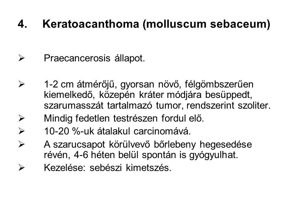 4.Keratoacanthoma (molluscum sebaceum)  Praecancerosis állapot.  1-2 cm átmérőjű, gyorsan növő, félgömbszerűen kiemelkedő, közepén kráter módjára be