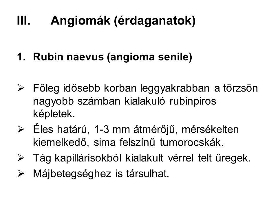 III.Angiomák (érdaganatok) 1.Rubin naevus (angioma senile)  Főleg idősebb korban leggyakrabban a törzsön nagyobb számban kialakuló rubinpiros képlete