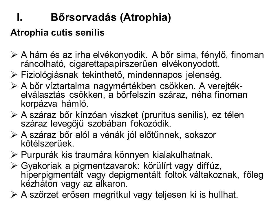 I.Bőrsorvadás (Atrophia) Atrophia cutis senilis  A hám és az irha elvékonyodik. A bőr sima, fénylő, finoman ráncolható, cigarettapapírszerűen elvékon