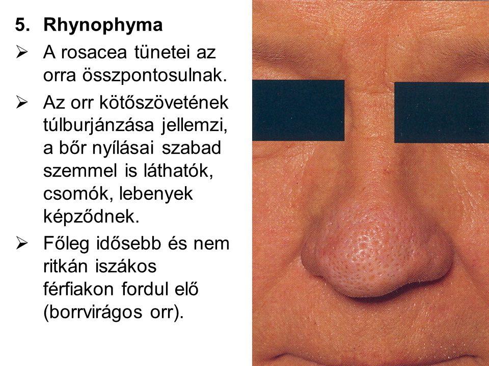5.Rhynophyma  A rosacea tünetei az orra összpontosulnak.  Az orr kötőszövetének túlburjánzása jellemzi, a bőr nyílásai szabad szemmel is láthatók, c