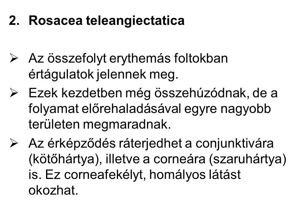 2.Rosacea teleangiectatica  Az összefolyt erythemás foltokban értágulatok jelennek meg.  Ezek kezdetben még összehúzódnak, de a folyamat előrehaladá