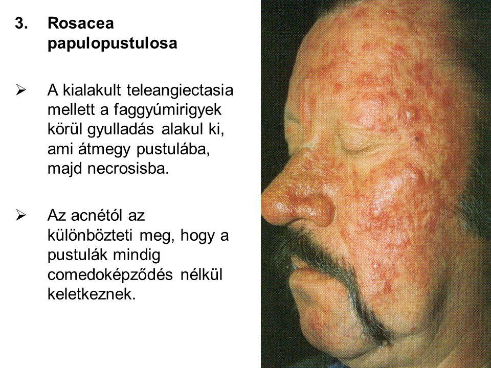3.Rosacea papulopustulosa  A kialakult teleangiectasia mellett a faggyúmirigyek körül gyulladás alakul ki, ami átmegy pustulába, majd necrosisba.  A