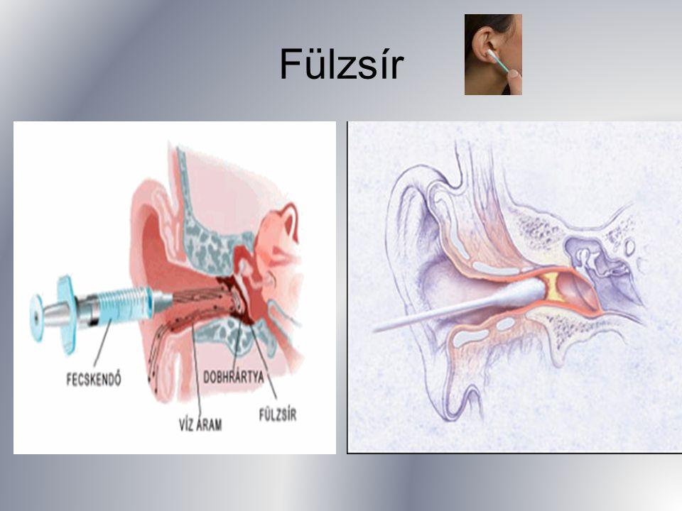 Halláskárosodás/nagyothallás/siketség A kutatások szerint számos oka lehet a hallásvesztésnek.