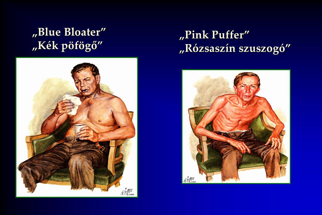 """""""Blue Bloater """"Kék pöfögő """"Pink Puffer """"Rózsaszín szuszogó"""