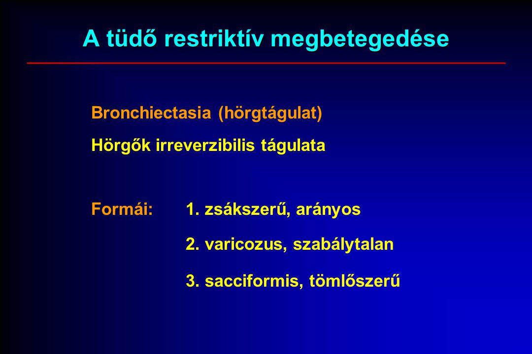 A tüdő restriktív megbetegedése Bronchiectasia (hörgtágulat) Hörgők irreverzibilis tágulata Formái:1. zsákszerű, arányos 2. varicozus, szabálytalan 3.