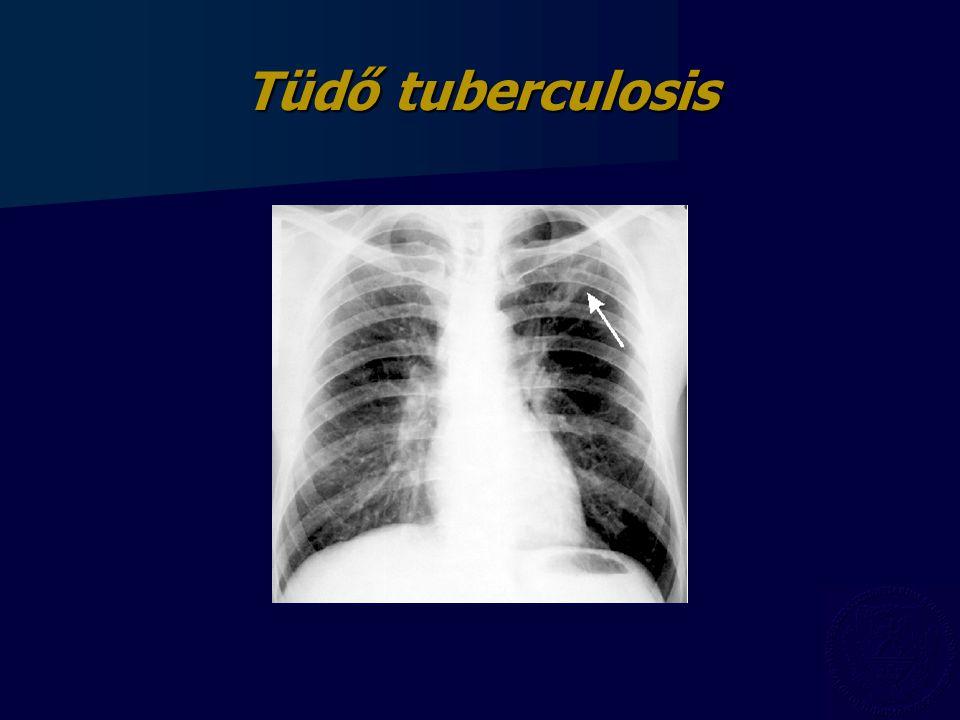 Tüdő tuberculosis