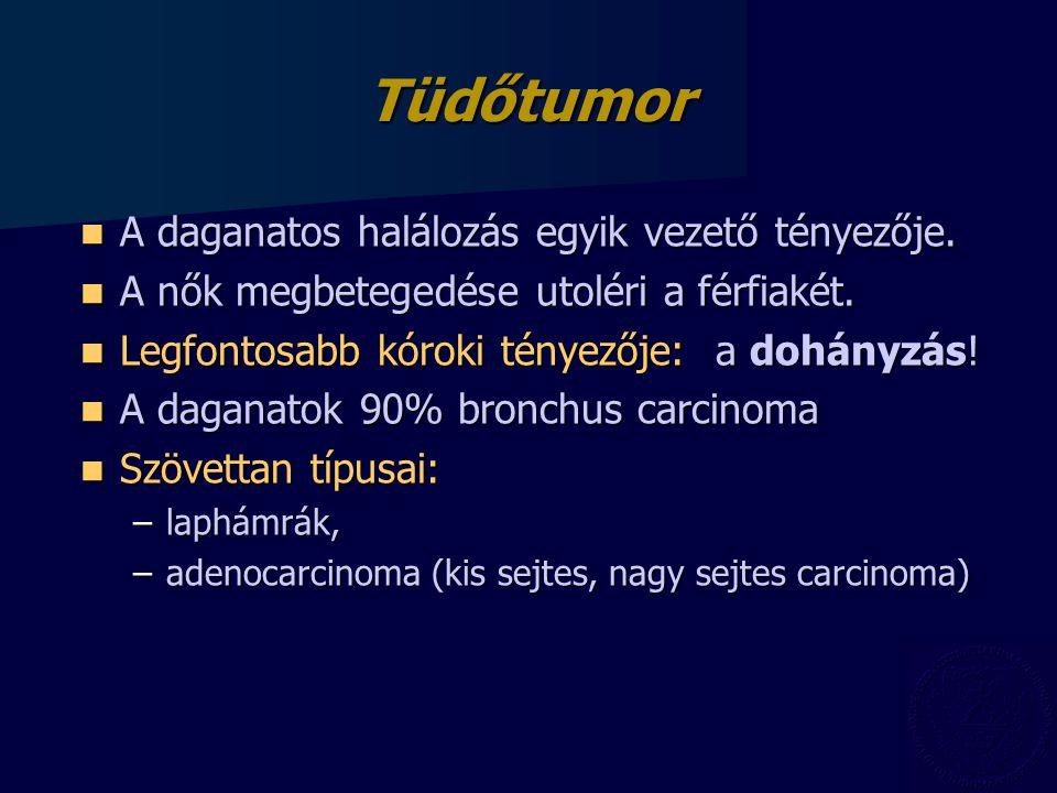 Tüdőtumor A daganatos halálozás egyik vezető tényezője.