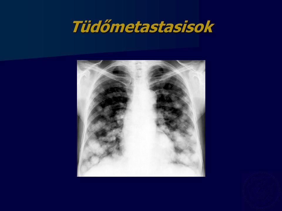 Tüdőmetastasisok