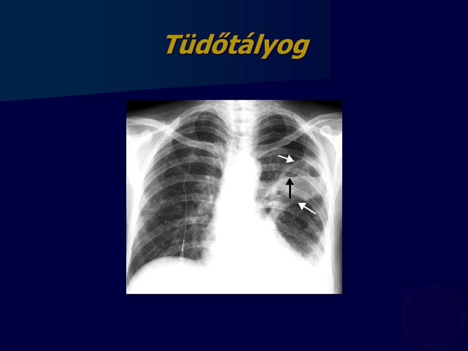 Tüdőtályog