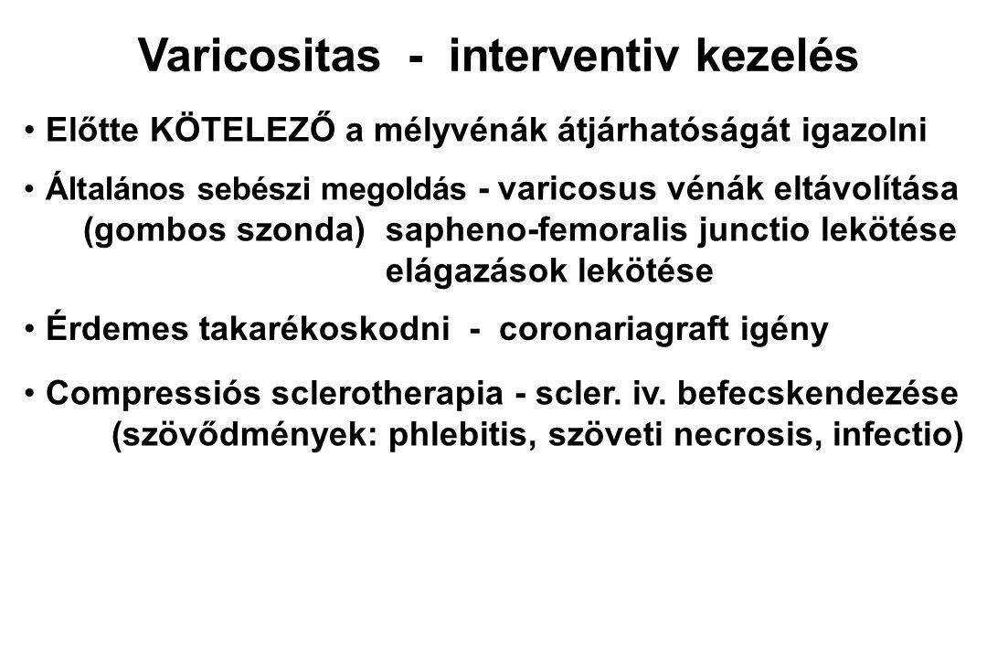 Varicositas - interventiv kezelés Általános sebészi megoldás - varicosus vénák eltávolítása (gombos szonda)sapheno-femoralis junctio lekötése elágazás
