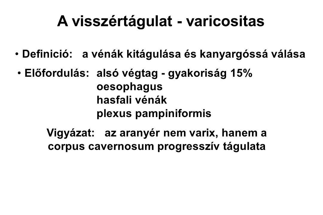 A visszértágulat - varicositas Definició: a vénák kitágulása és kanyargóssá válása Előfordulás:alsó végtag - gyakoriság 15% oesophagus hasfali vénák p