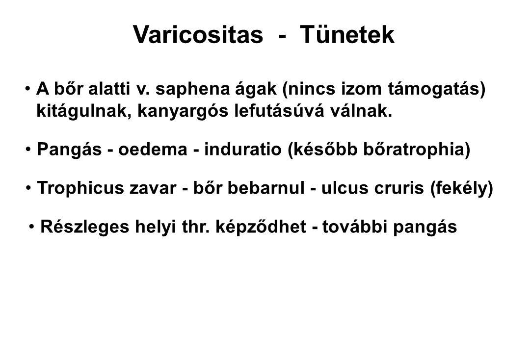 Varicositas - Panaszok Nem feltétlenül arányosak a morphologiai képpel Főleg éjszaka lábikra görcs (lábemelésre szünik) Bőrpir - ekzemás dermatitis - viszketés (bokák felett)