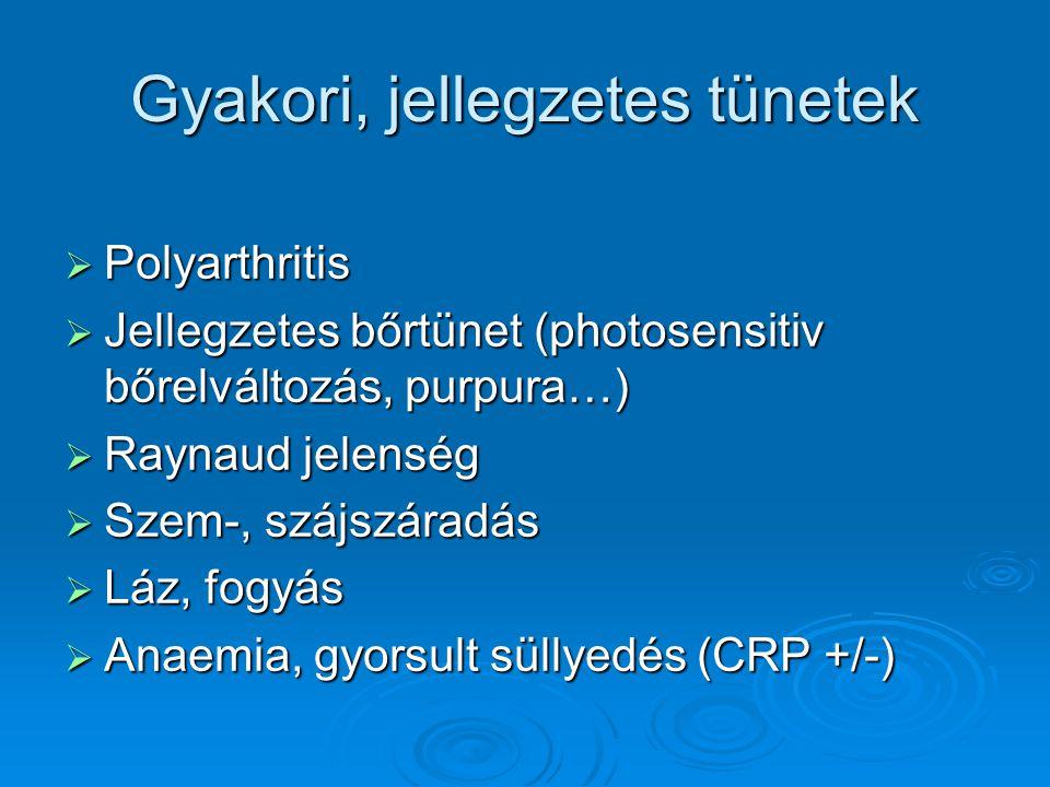 Gyakori, jellegzetes tünetek  Polyarthritis  Jellegzetes bőrtünet (photosensitiv bőrelváltozás, purpura…)  Raynaud jelenség  Szem-, szájszáradás 