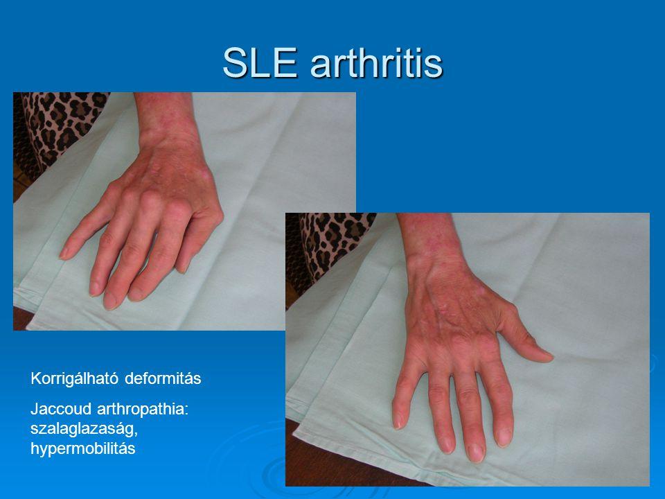 SLE arthritis Korrigálható deformitás Jaccoud arthropathia: szalaglazaság, hypermobilitás