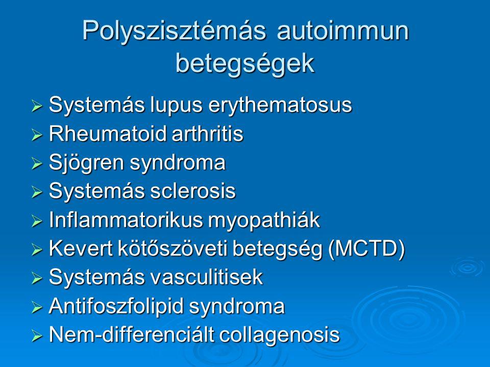 Gyakori, jellegzetes tünetek  Polyarthritis  Jellegzetes bőrtünet (photosensitiv bőrelváltozás, purpura…)  Raynaud jelenség  Szem-, szájszáradás  Láz, fogyás  Anaemia, gyorsult süllyedés (CRP +/-)