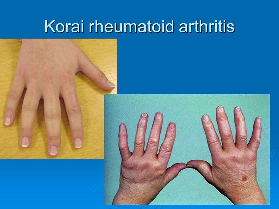 Korai rheumatoid arthritis