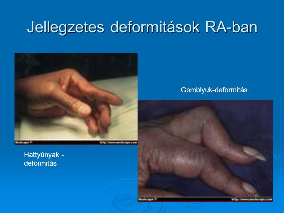 Jellegzetes deformitások RA-ban Hattyúnyak - deformitás Gomblyuk-deformitás