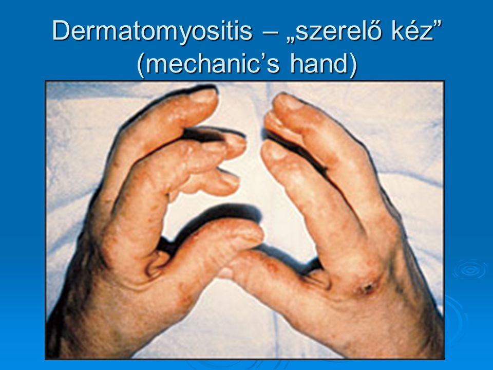 """Dermatomyositis – """"szerelő kéz"""" (mechanic's hand)"""
