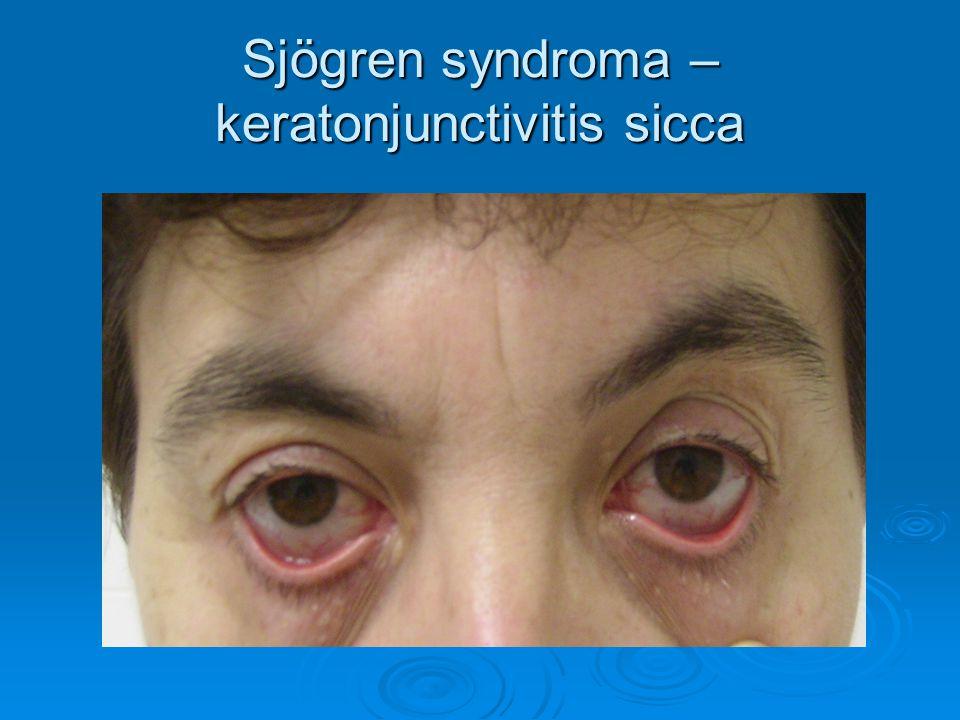 Sjögren syndroma – keratonjunctivitis sicca