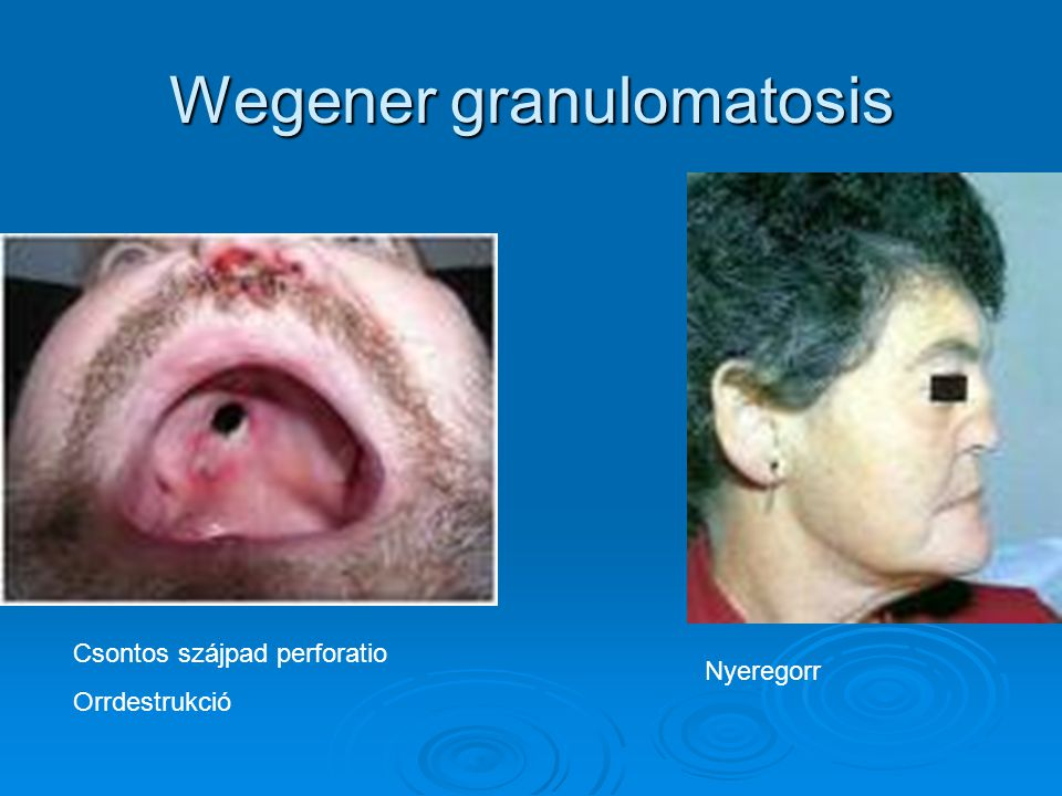 Wegener granulomatosis Csontos szájpad perforatio Orrdestrukció Nyeregorr