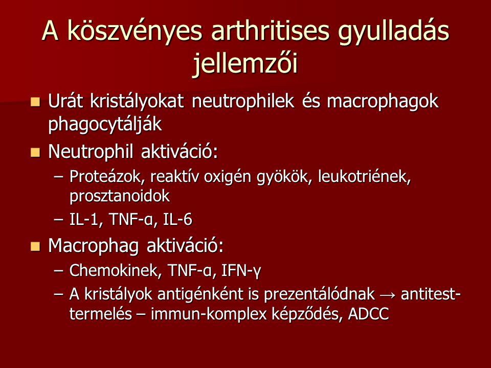 A köszvényes arthritises gyulladás jellemzői Urát kristályokat neutrophilek és macrophagok phagocytálják Urát kristályokat neutrophilek és macrophagok