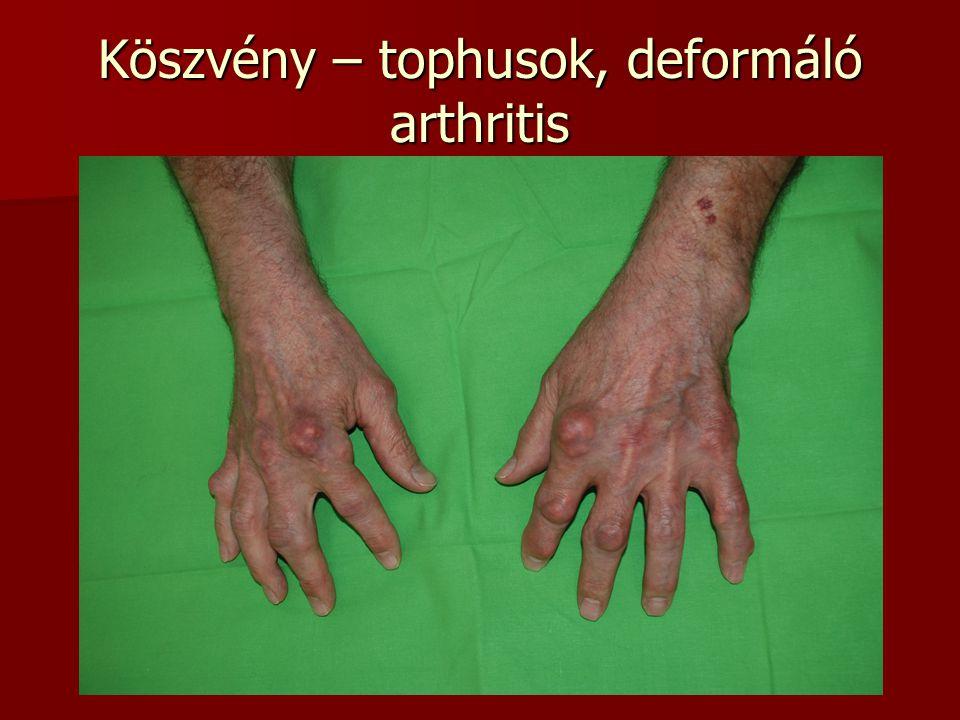 Köszvény – tophusok, deformáló arthritis