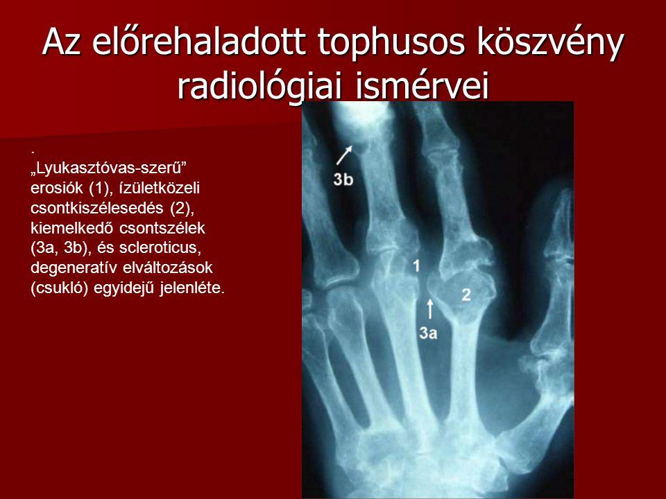 """Az előrehaladott tophusos köszvény radiológiai ismérvei. """"Lyukasztóvas-szerű"""" erosiók (1), ízületközeli csontkiszélesedés (2), kiemelkedő csontszélek"""