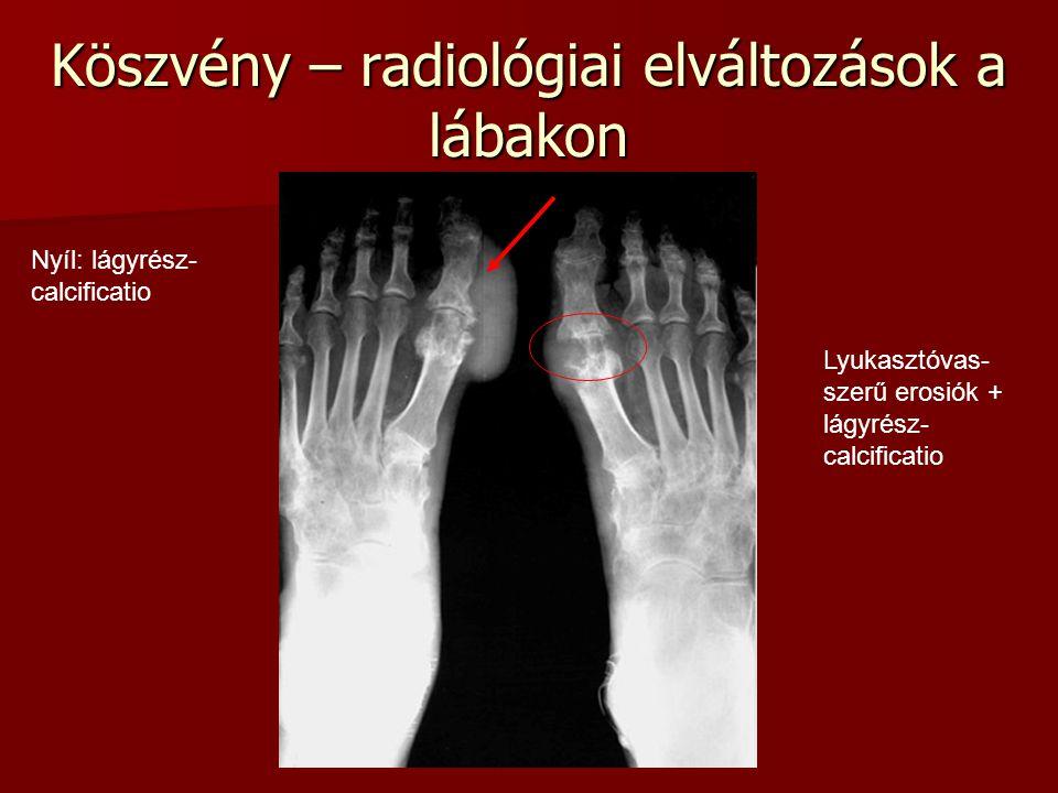 Köszvény – radiológiai elváltozások a lábakon Lyukasztóvas- szerű erosiók + lágyrész- calcificatio Nyíl: lágyrész- calcificatio