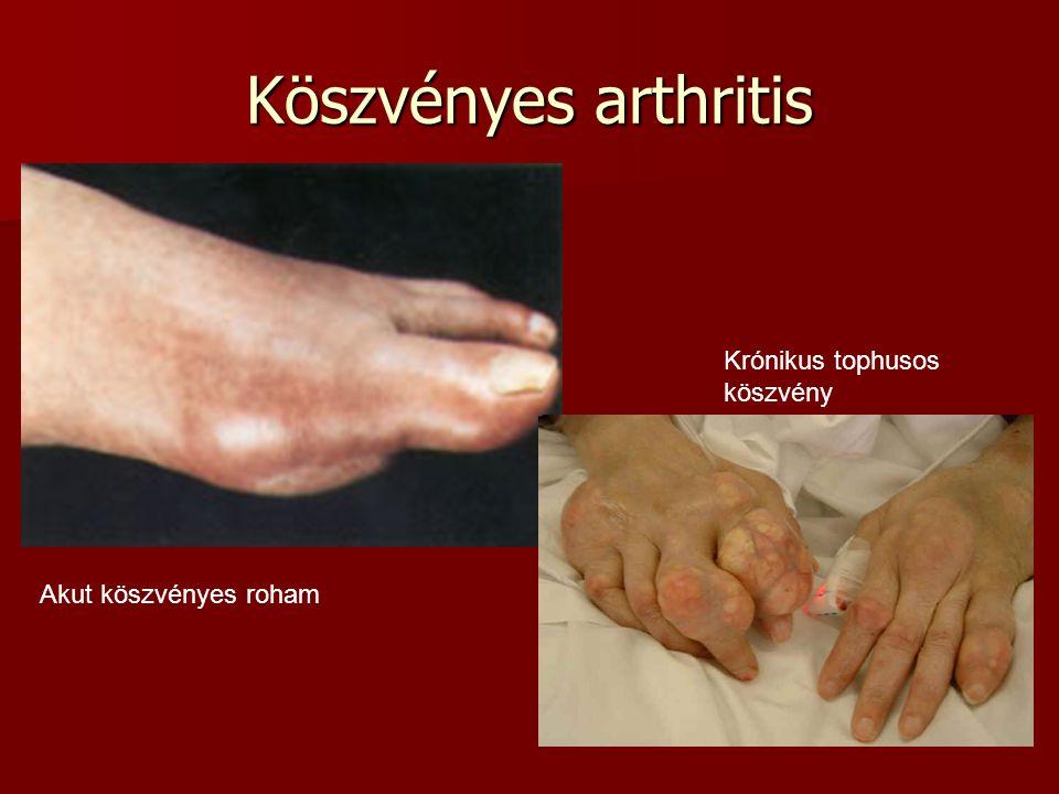 Köszvényes arthritis Akut köszvényes roham Krónikus tophusos köszvény