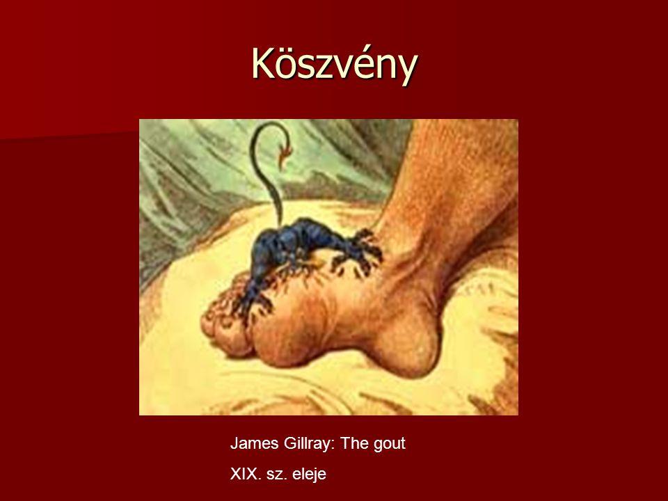 Köszvény James Gillray: The gout XIX. sz. eleje
