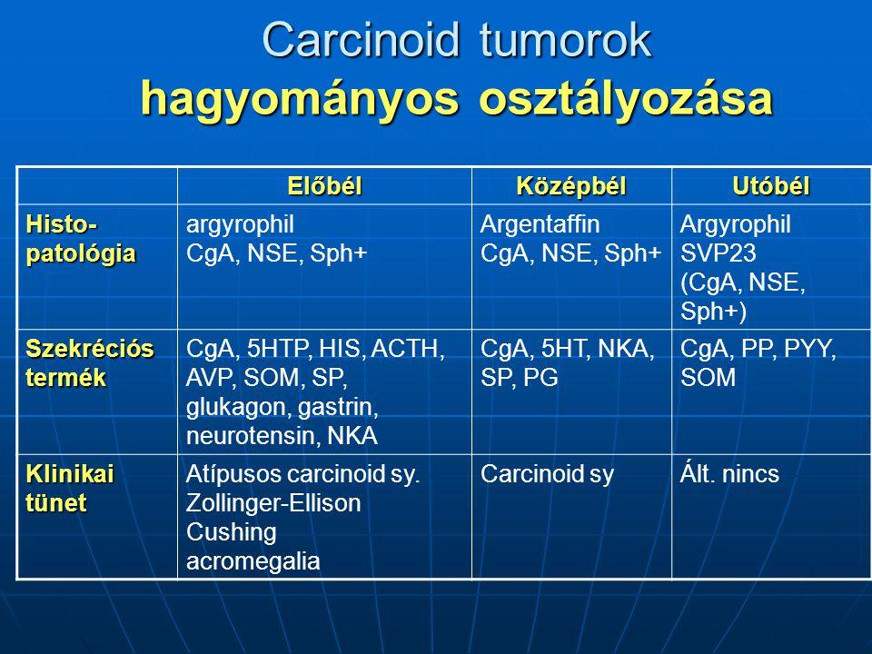Carcinoid tumorok hagyományos osztályozása ElőbélKözépbélUtóbél Histo-patológia argyrophil CgA, NSE, Sph+ Argentaffin CgA, NSE, Sph+ Argyrophil SVP23 (CgA, NSE, Sph+) Szekréciós termék CgA, 5HTP, HIS, ACTH, AVP, SOM, SP, glukagon, gastrin, neurotensin, NKA CgA, 5HT, NKA, SP, PG CgA, PP, PYY, SOM Klinikai tünet Atípusos carcinoid sy.