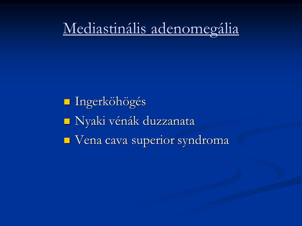 Mediastinális adenomegália Ingerköhögés Ingerköhögés Nyaki vénák duzzanata Nyaki vénák duzzanata Vena cava superior syndroma Vena cava superior syndro