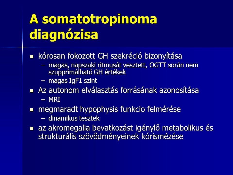 A somatotropinoma diagnózisa kórosan fokozott GH szekréció bizonyítása kórosan fokozott GH szekréció bizonyítása –magas, napszaki ritmusát vesztett, O