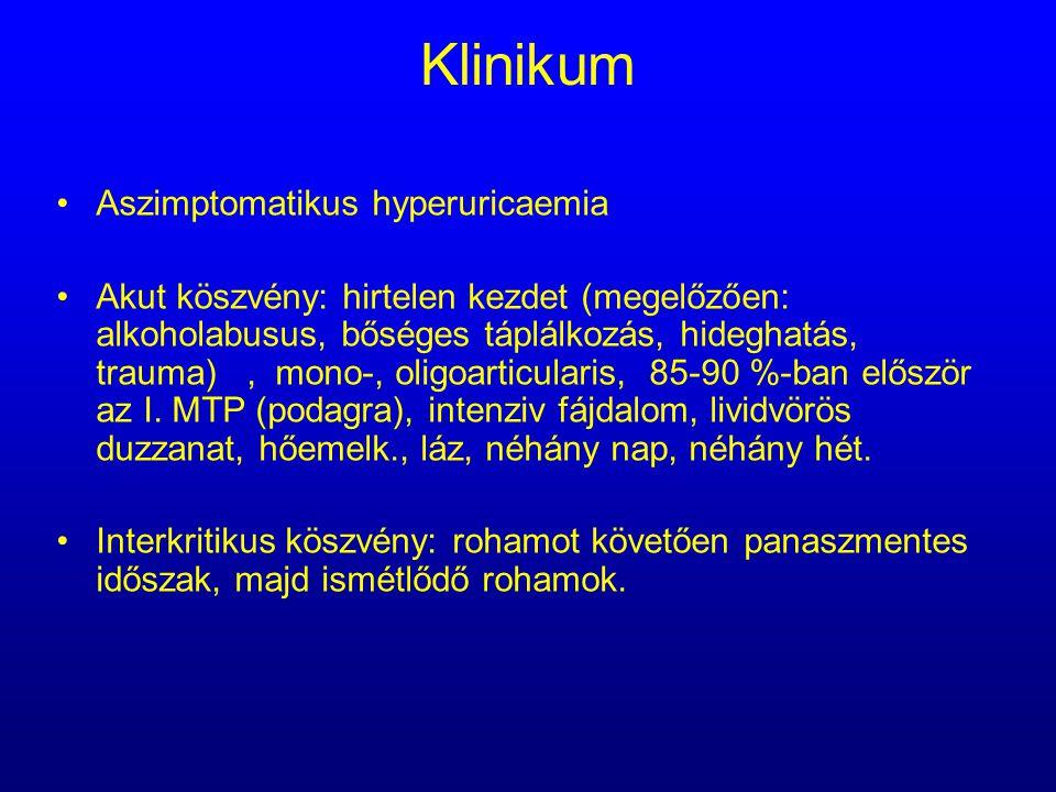 Klinikum Aszimptomatikus hyperuricaemia Akut köszvény: hirtelen kezdet (megelőzően: alkoholabusus, bőséges táplálkozás, hideghatás, trauma), mono-, ol