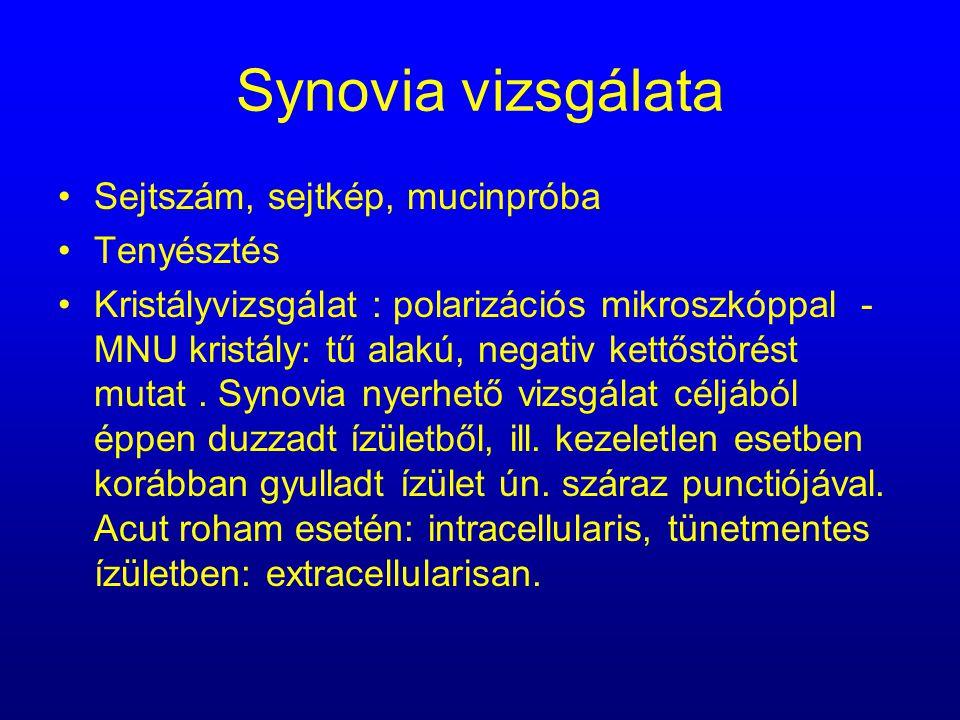Synovia vizsgálata Sejtszám, sejtkép, mucinpróba Tenyésztés Kristályvizsgálat : polarizációs mikroszkóppal - MNU kristály: tű alakú, negativ kettőstör