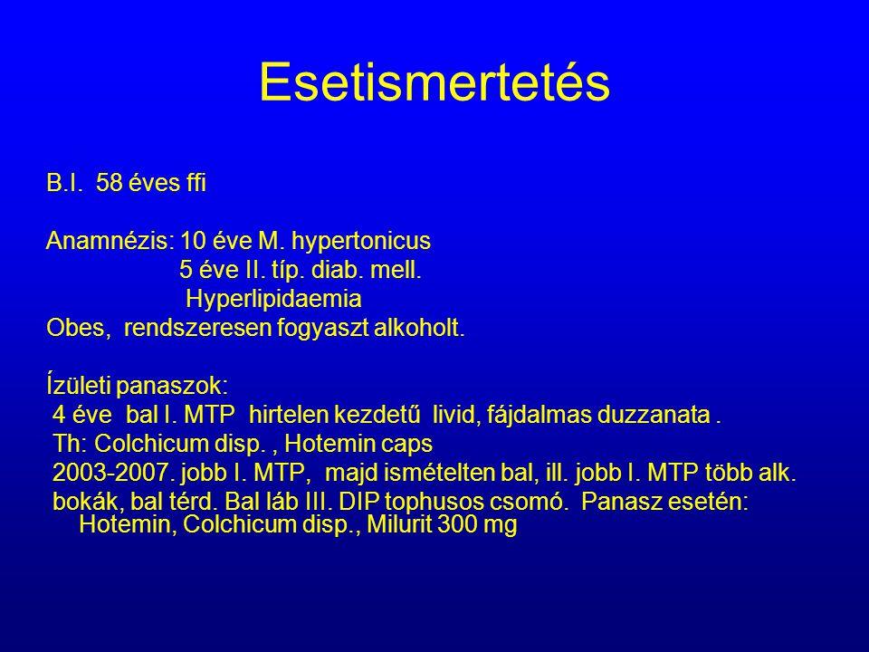 Esetismertetés B.I. 58 éves ffi Anamnézis: 10 éve M. hypertonicus 5 éve II. típ. diab. mell. Hyperlipidaemia Obes, rendszeresen fogyaszt alkoholt. Ízü