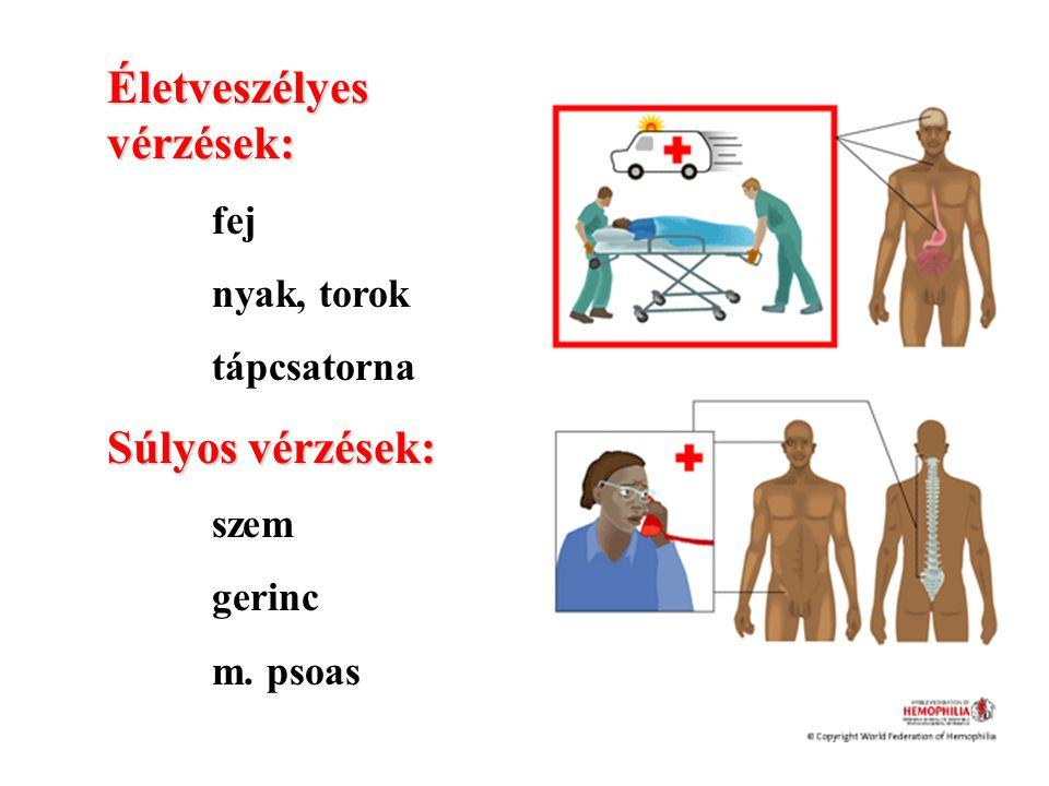 Életveszélyes vérzések: fej nyak, torok tápcsatorna Súlyos vérzések: szem gerinc m. psoas