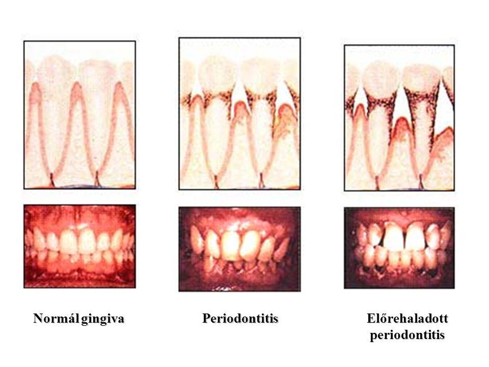 Normál gingiva Periodontitis Előrehaladott periodontitis