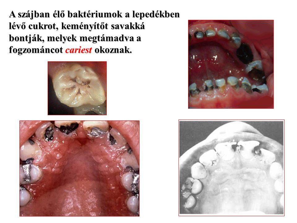 A szájban élő baktériumok a lepedékben lévő cukrot, keményítőt savakká bontják, melyek megtámadva a fogzománcot cariest okoznak.
