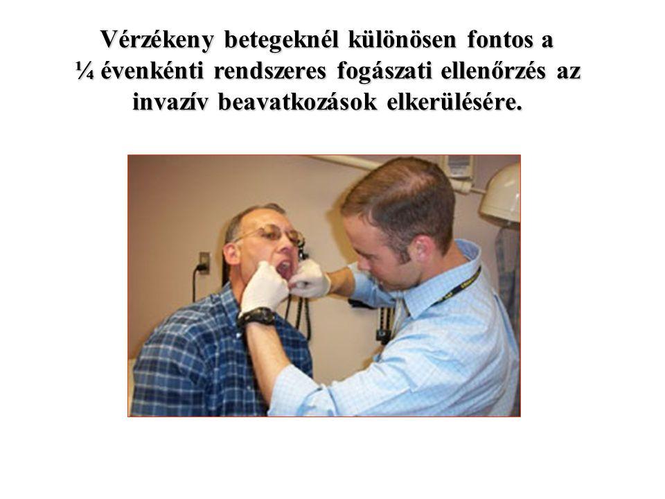 Vérzékeny betegeknél különösen fontos a ¼ évenkénti rendszeres fogászati ellenőrzés az invazív beavatkozások elkerülésére.