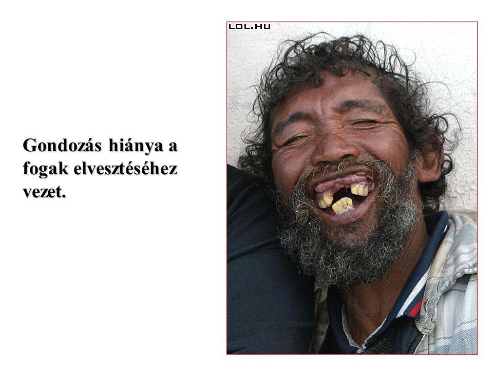 Gondozás hiánya a fogak elvesztéséhez vezet.