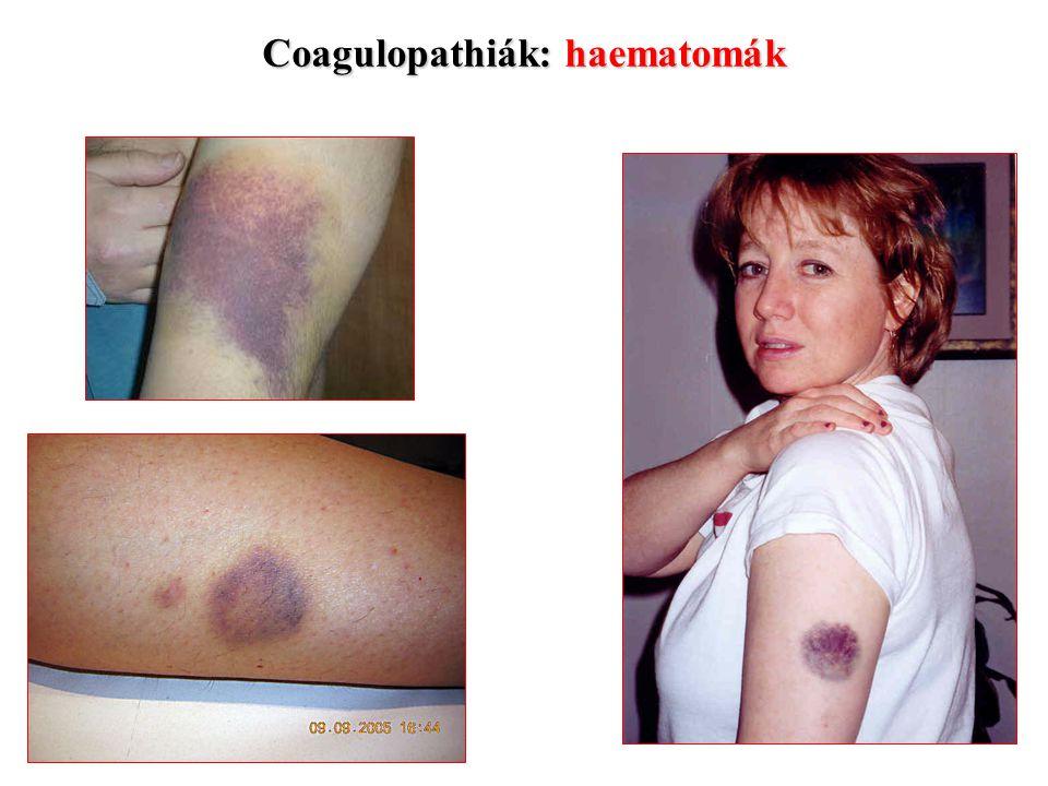 Coagulopathiák: haematomák