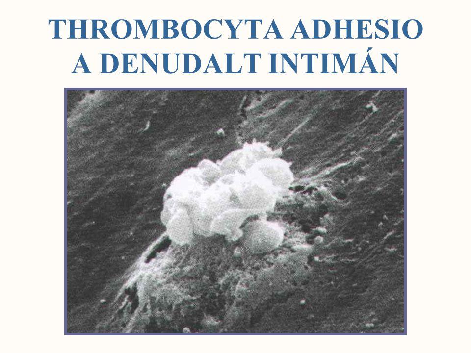 THROMBOCYTA AKTIVÁCIÓ Alacsony affinitású (ligand nonreceptive) állapot Nagy affinitású (ligand receptive) állapot Egy thrombocyta > 40000 fibrin molekulát köthet ADP COLLAGEN THROMBIN ADRENALIN TxA2 SEROTONIN PAF AATxA2 GP IIb/IIIa ASA