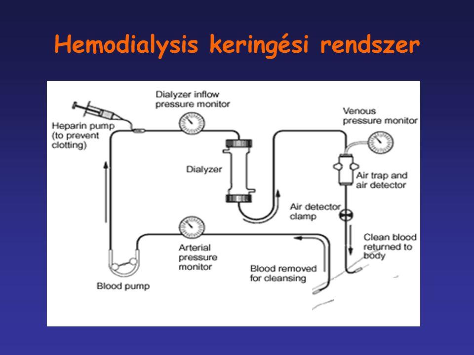 Hemodialysis keringési rendszer