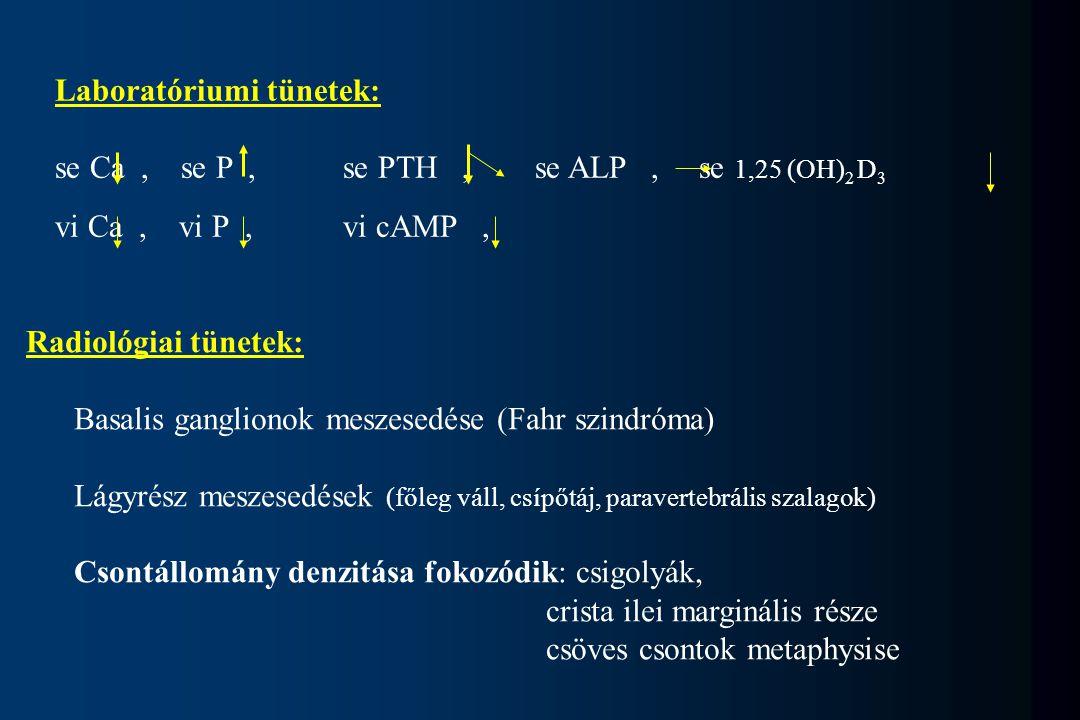 Laboratóriumi tünetek: se Ca, se P,se PTH,se ALP, se 1,25 (OH) 2 D 3 vi Ca, vi P,vi cAMP, Radiológiai tünetek: Basalis ganglionok meszesedése (Fahr sz