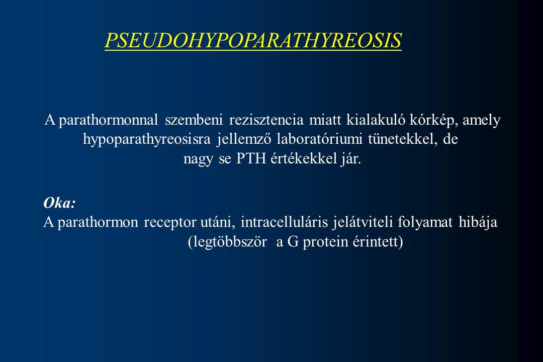 PSEUDOHYPOPARATHYREOSIS A parathormonnal szembeni rezisztencia miatt kialakuló kórkép, amely hypoparathyreosisra jellemző laboratóriumi tünetekkel, de