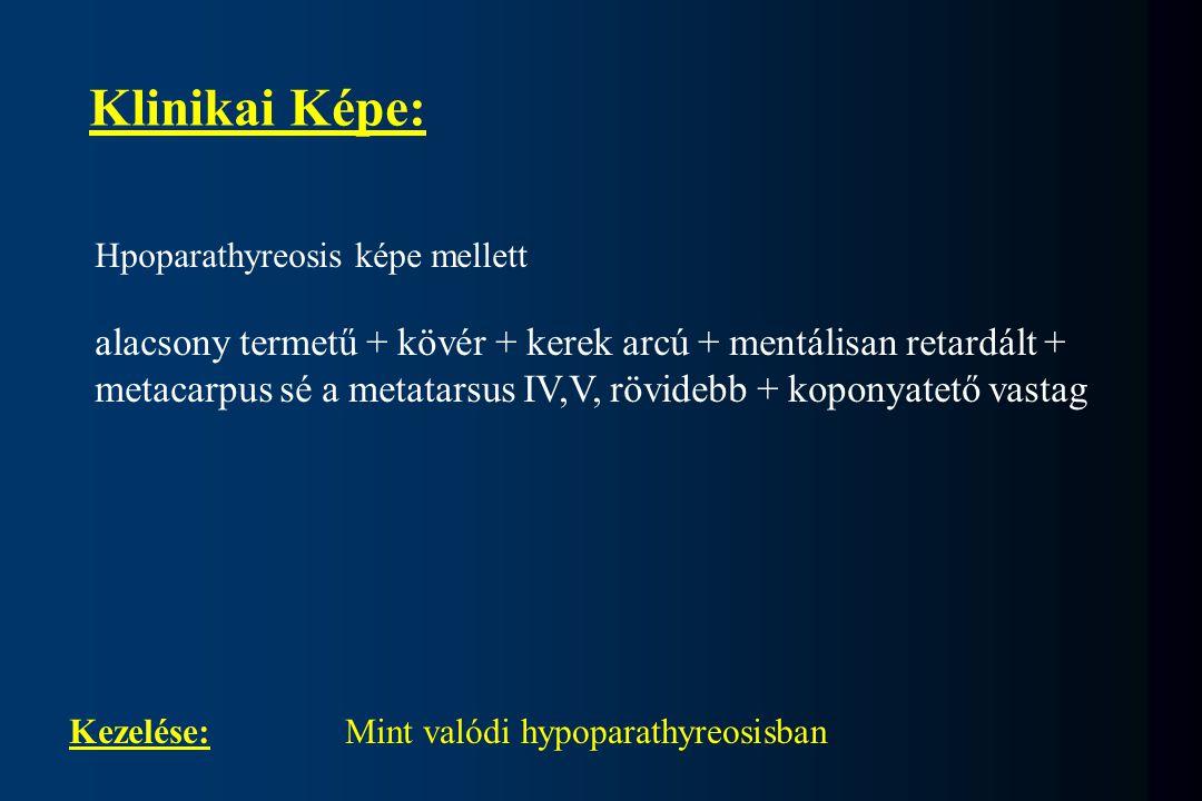 Klinikai Képe: Hpoparathyreosis képe mellett alacsony termetű + kövér + kerek arcú + mentálisan retardált + metacarpus sé a metatarsus IV,V, rövidebb