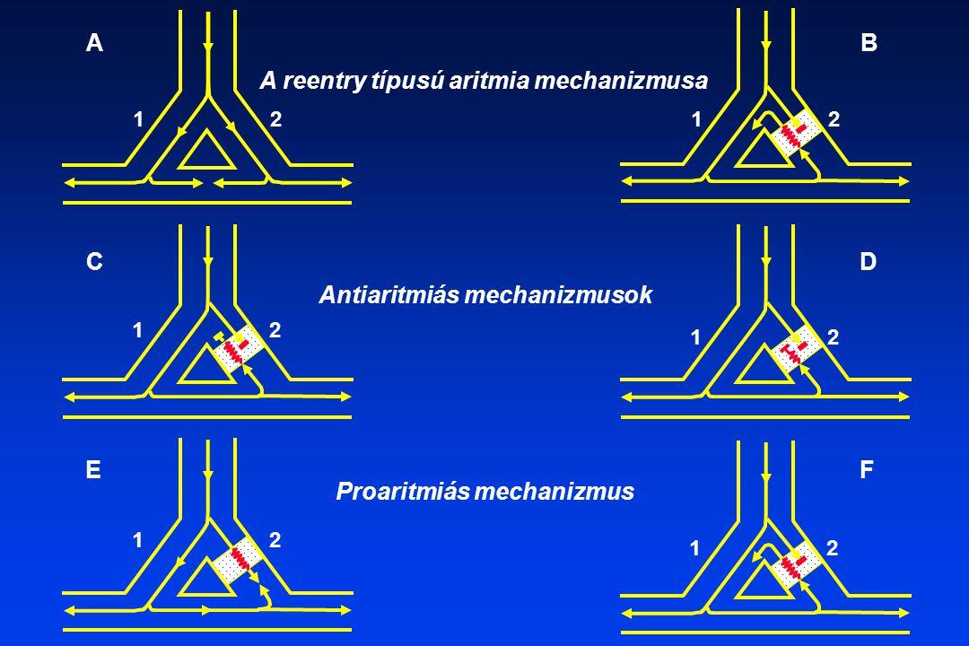 A reentry típusú aritmia mechanizmusa Antiaritmiás mechanizmusok Proaritmiás mechanizmus AB CD EF 12 12 12 12 12 12