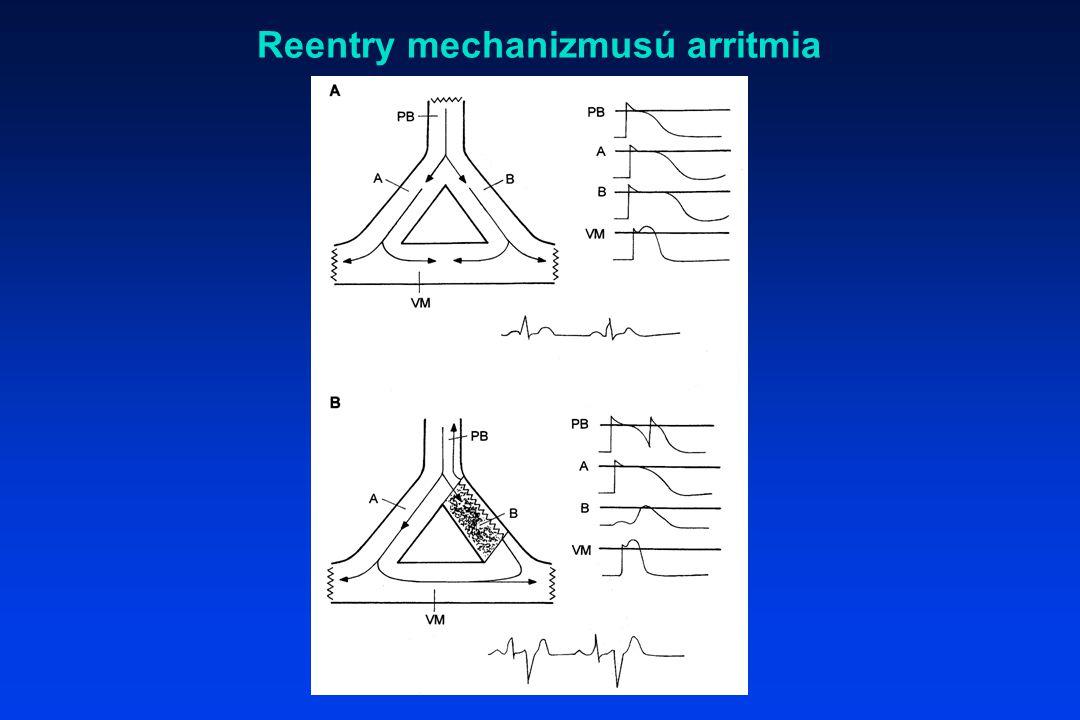 Reentry mechanizmusú arritmia