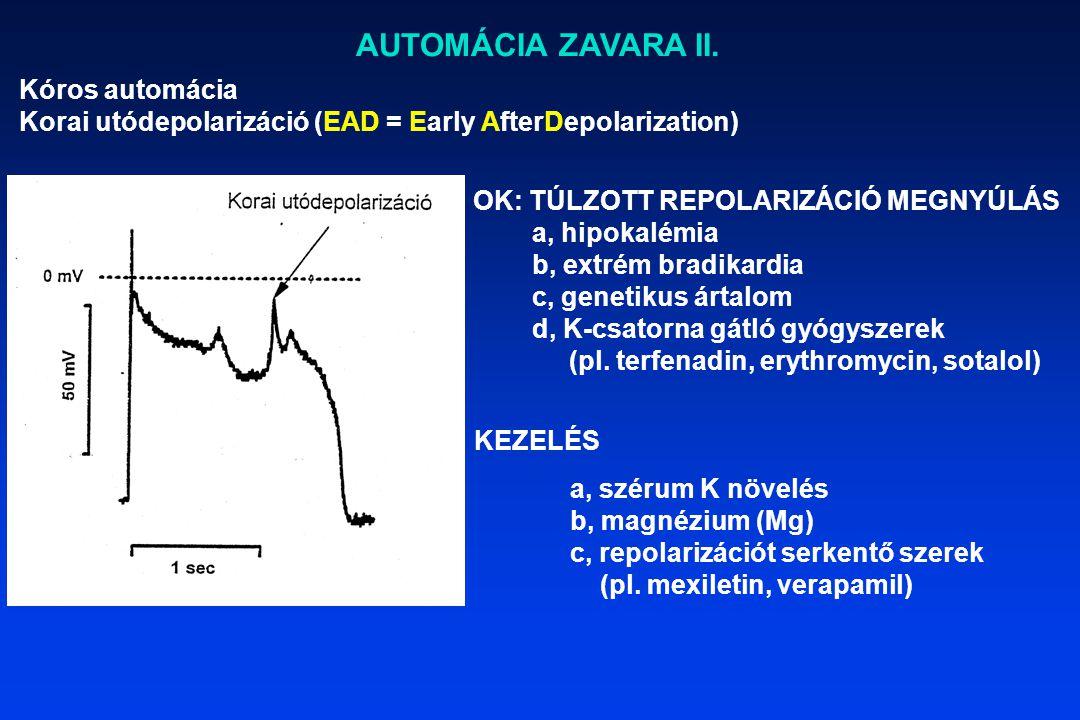AUTOMÁCIA ZAVARA II. Kóros automácia Korai utódepolarizáció (EAD = Early AfterDepolarization) OK: TÚLZOTT REPOLARIZÁCIÓ MEGNYÚLÁS a, hipokalémia b, ex